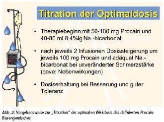 procain basen infusion